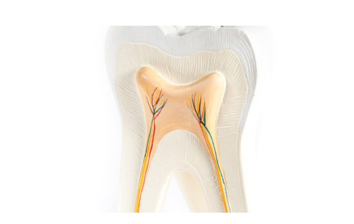 At Sunshine Coast Smile Centre we perform all Root Canal Procedure onsite at our Maroochydore practice