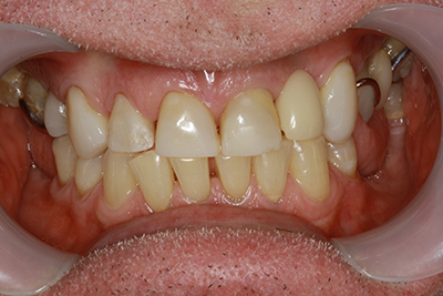 Whitening, composite bonding and partial denture after